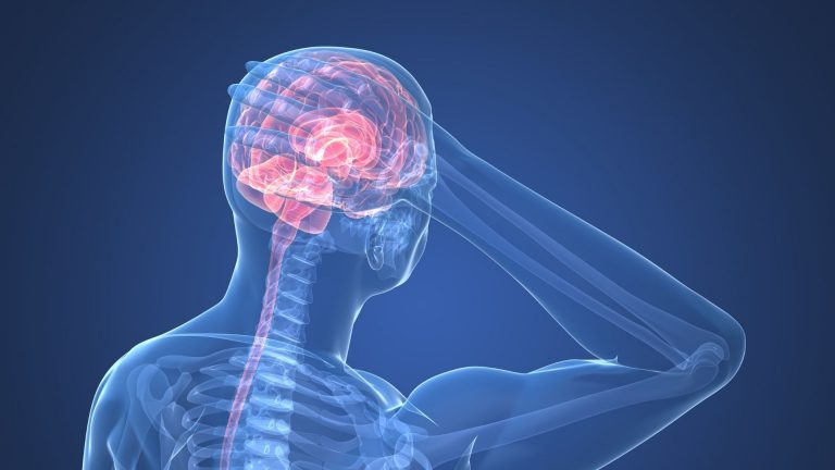 Read more about the article CBD OIL FOR MIGRAINES – CAN IT HELP ?